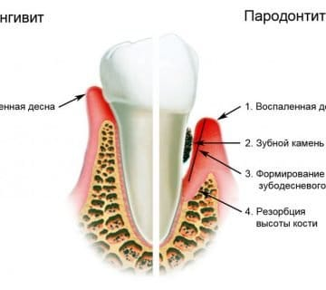 Пародонтит и гингивит