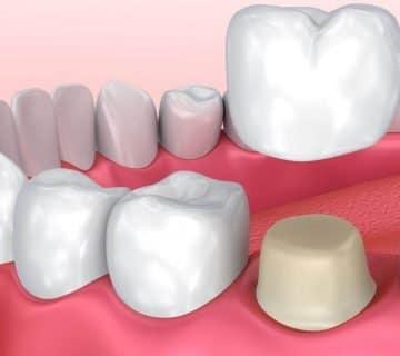 Зъбните корони
